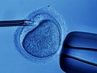 celulas-tronco-embrionarias-56635